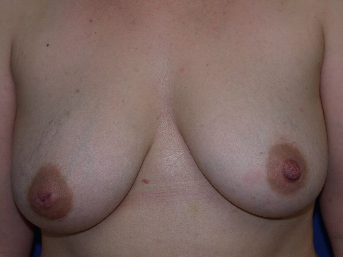 Breast Revision Before - Front View