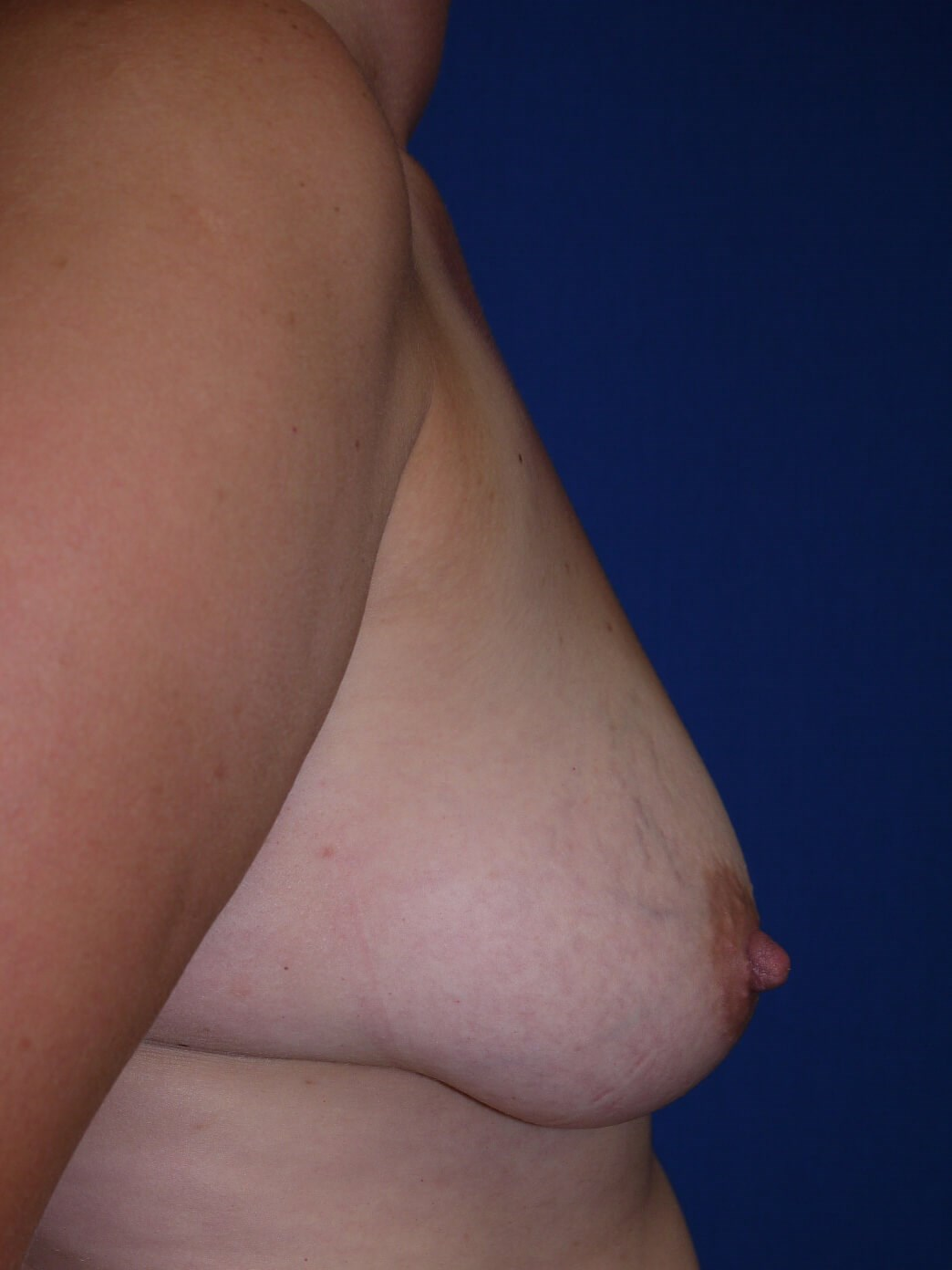 Breast Revision After - Right Side