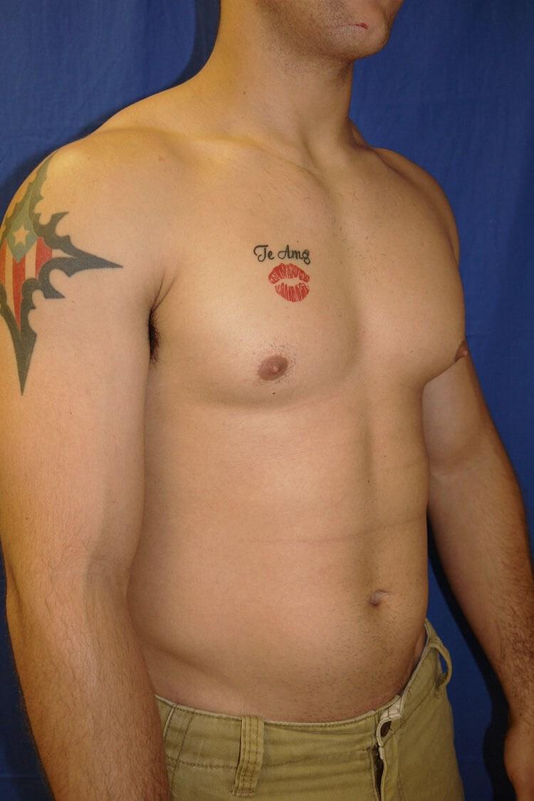 Before Gynecomastia - Right Oblique View - Right Oblique View