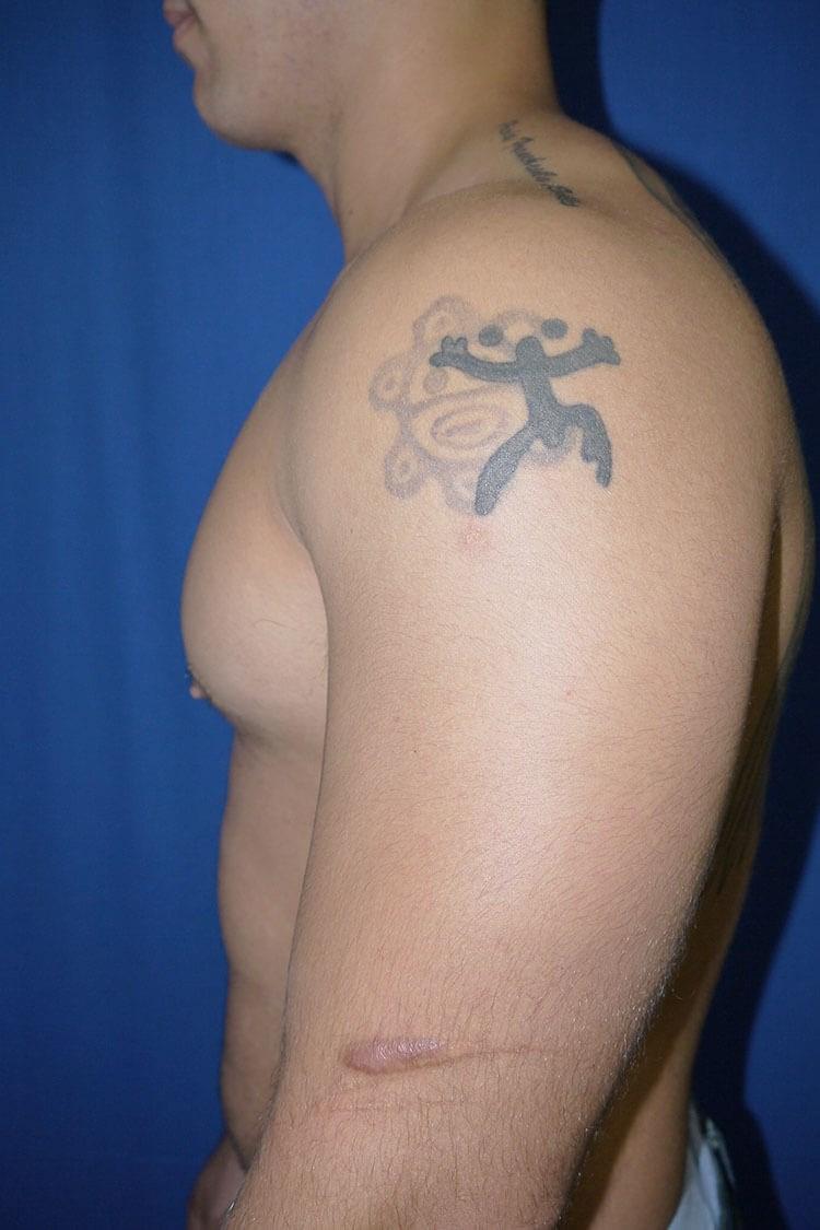 After Gynecomastia - Left Side - Left Side
