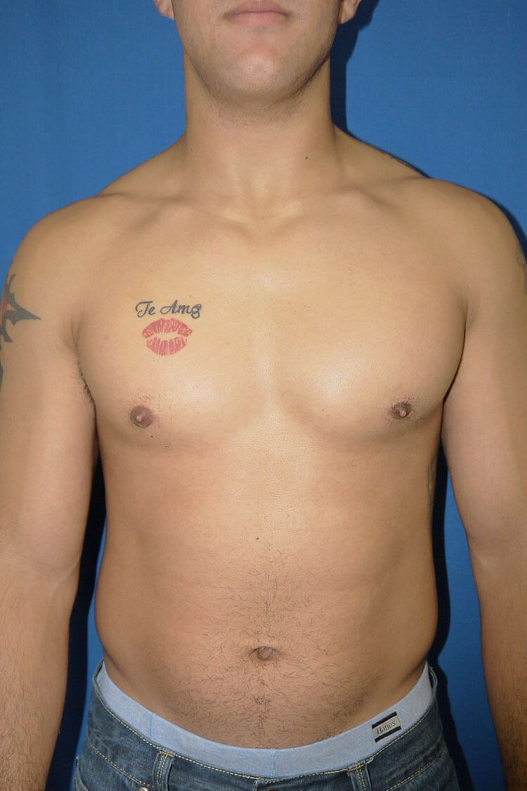 After Gynecomastia - Front View