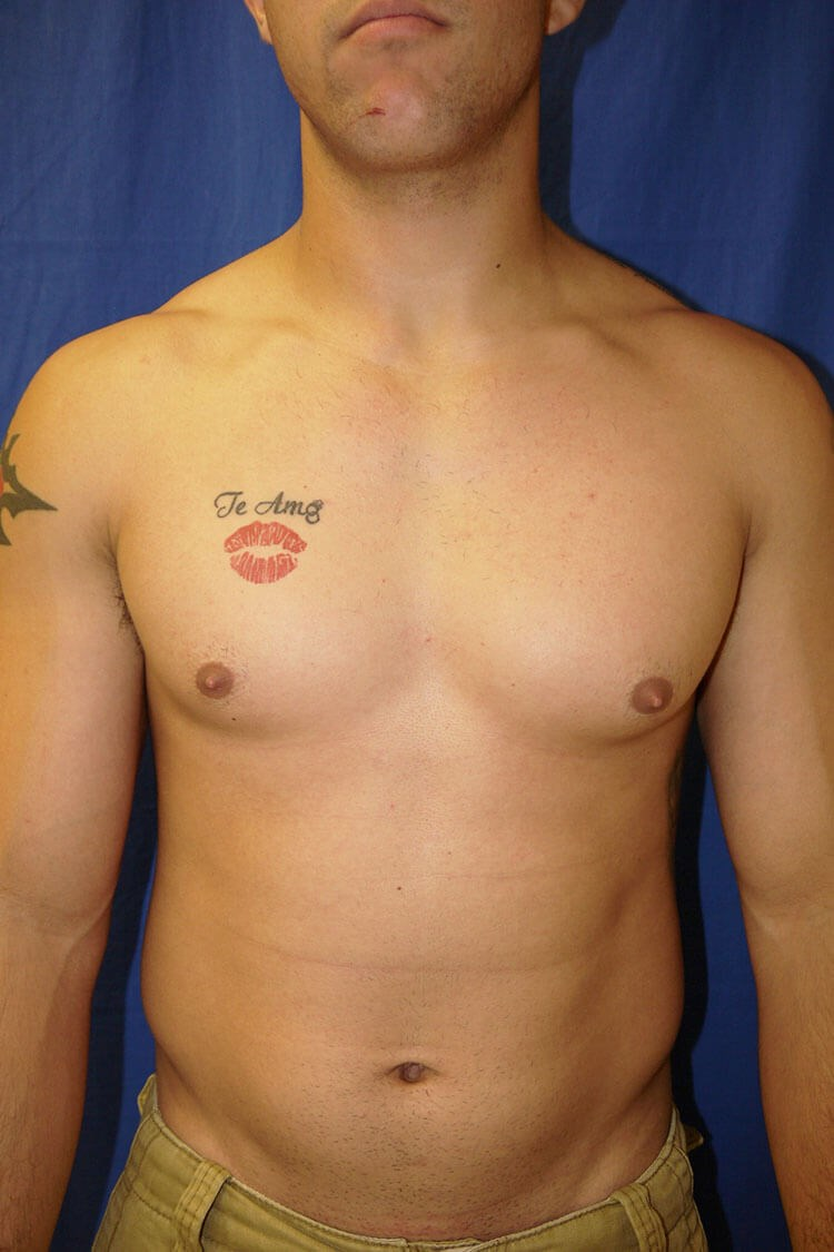 Before Gynecomastia - Front View