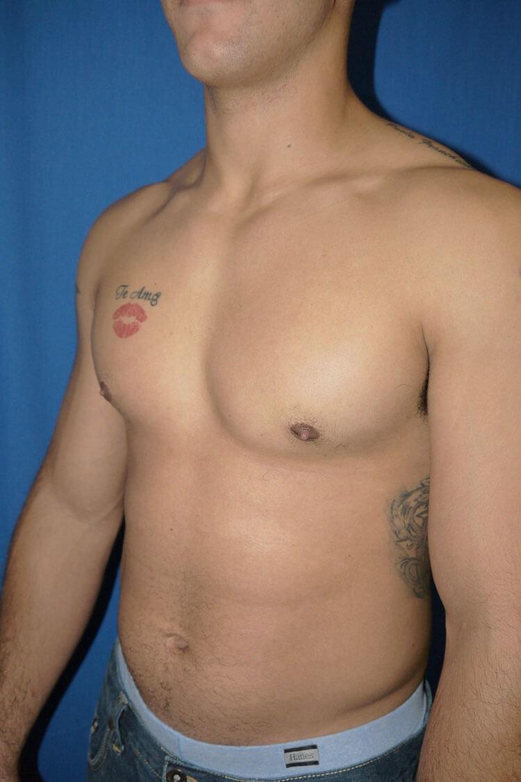 After Gynecomastia - Left Oblique View - Left Oblique View