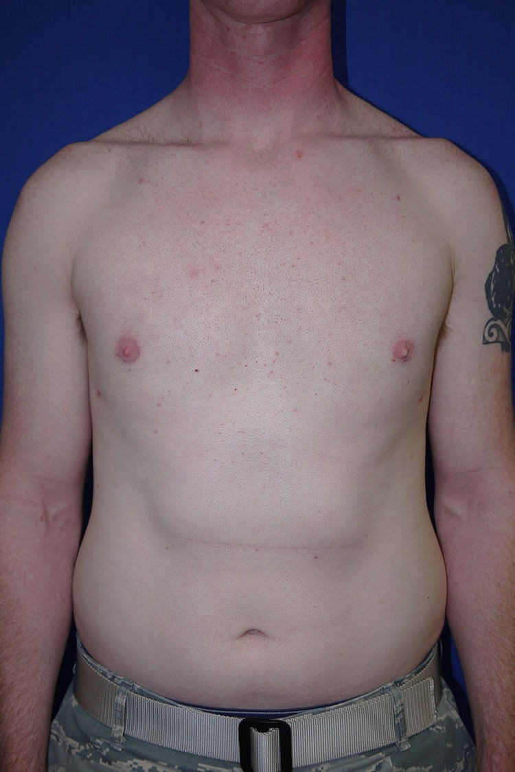 Breast Liposuction after - Front View