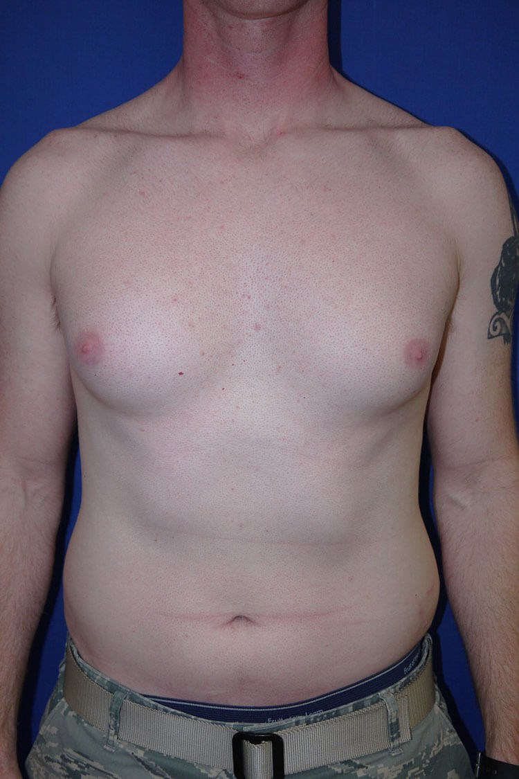 Breast Liposuction Before - Front View