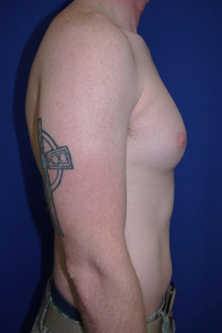 Breast Liposuction Before - Right Side