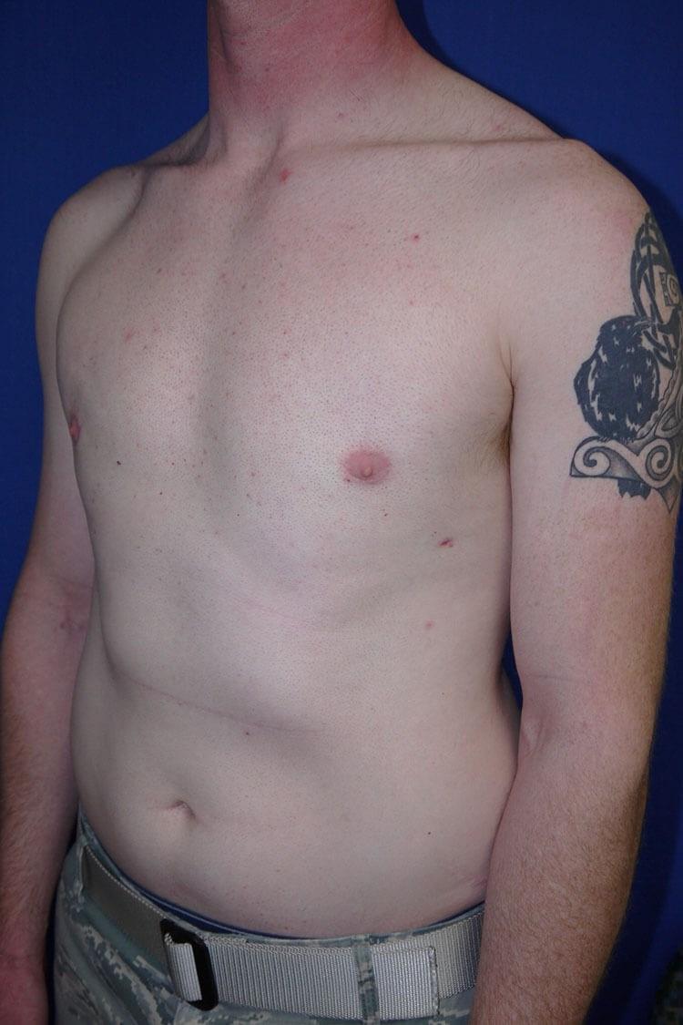 Breast Liposuction after - Left Oblique View