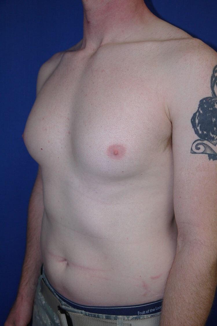 Breast Liposuction Before - Left Oblique View