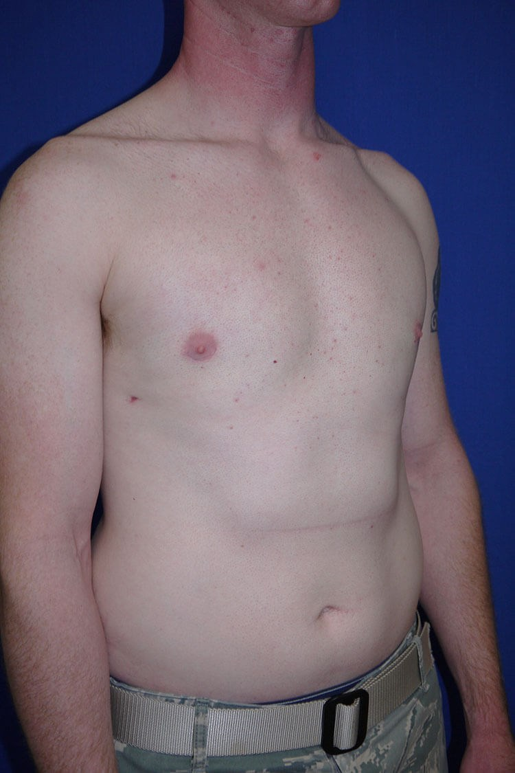 Breast Liposuction after - Right Oblique View