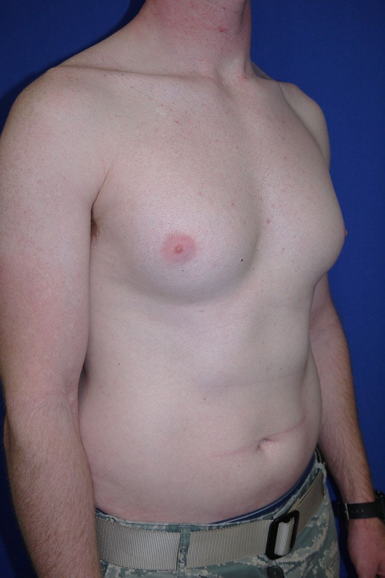 Breast Liposuction Before - Right Oblique View