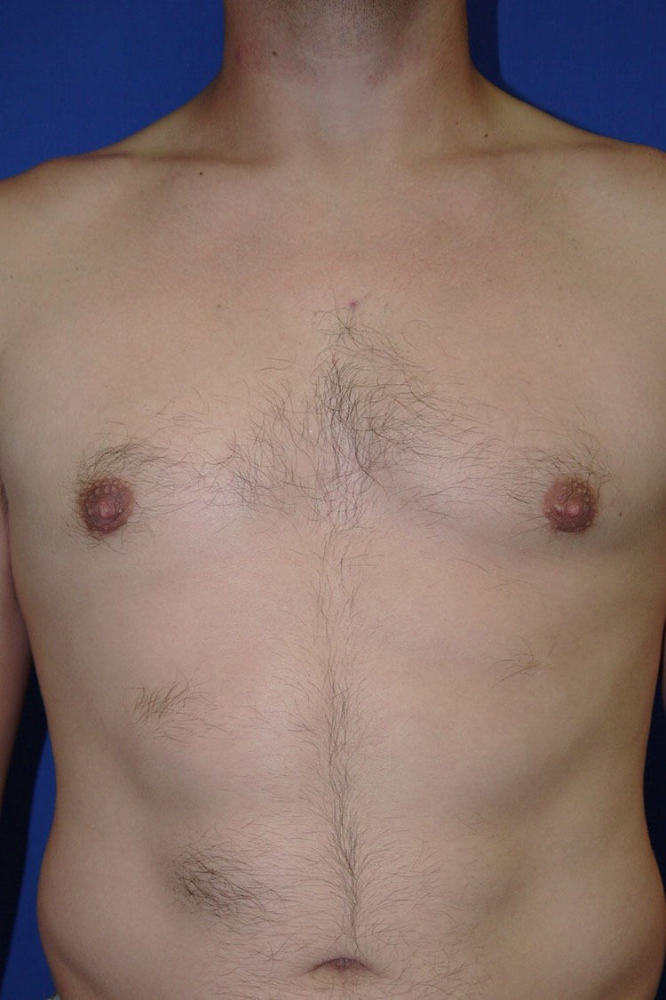 Gynecomastia After - Front View