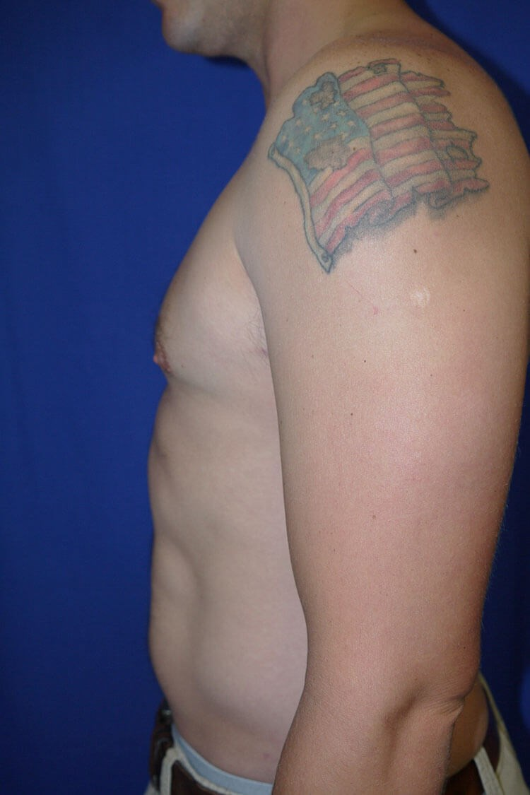 Gynecomastia After - Left Side