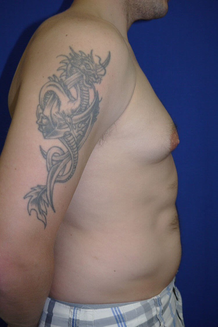 Gynecomastia Before - Right Side