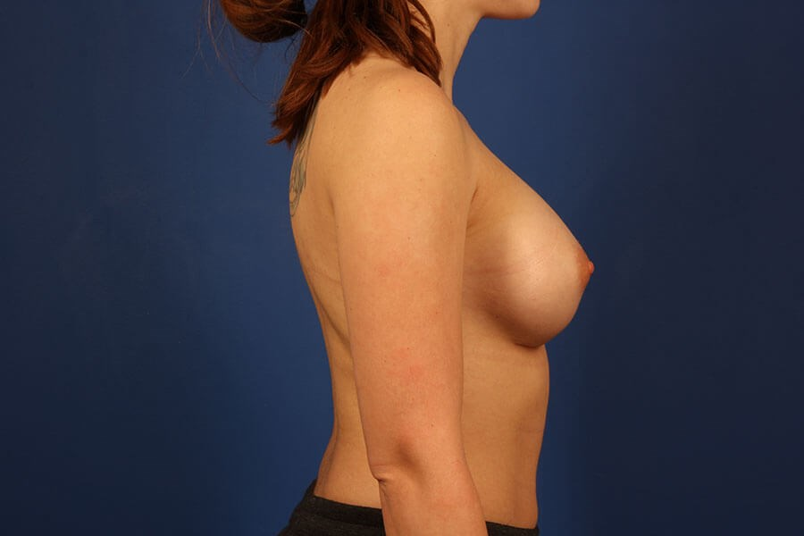 after breast augmentation Right View - Right View