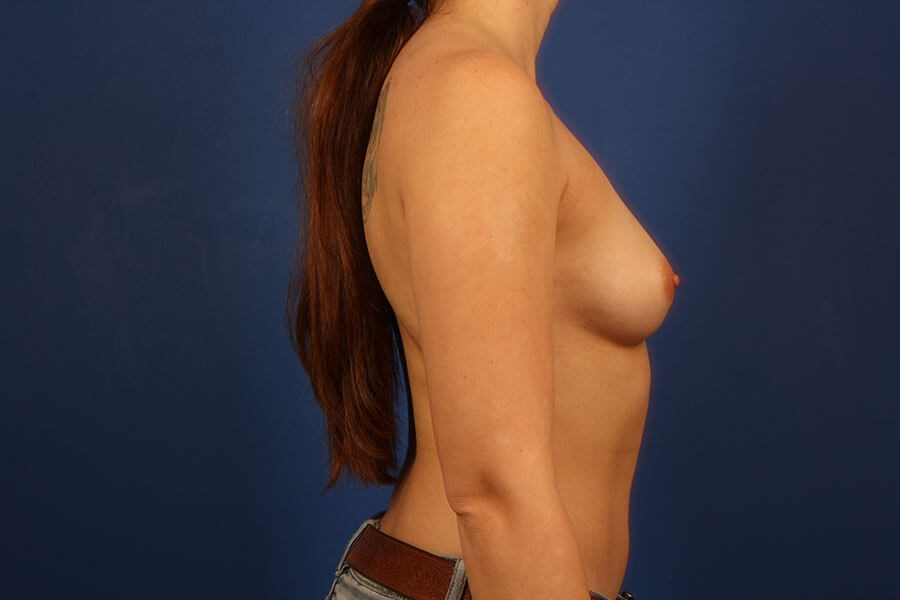 before breast augmentation Right View - Right View