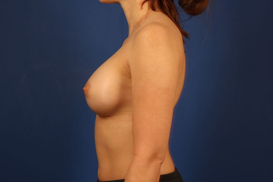 after breast augmentation Left View - Left View