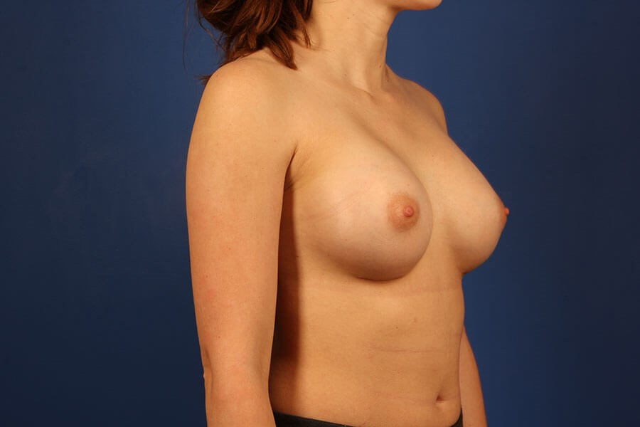 after breast augmentation Right Oblique View - Right Oblique View