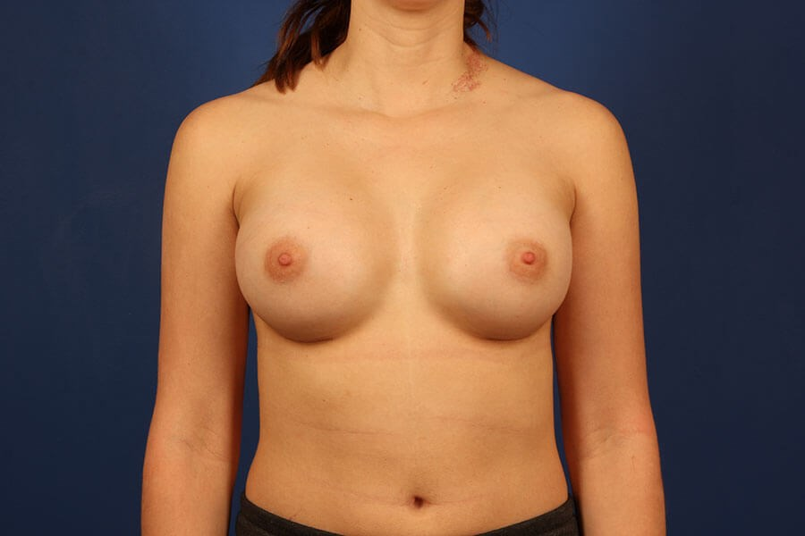 after breast augmentation - Front View