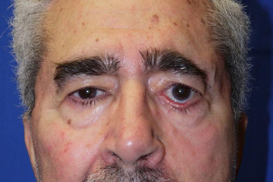 Brow Lift Procedure Photo - Front View