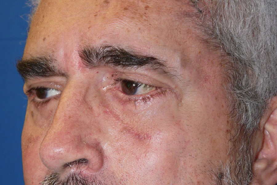 Eyelid Surgery After - Left Oblique View
