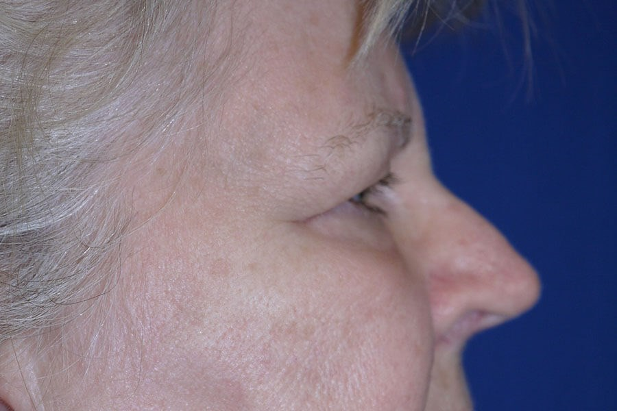 Before Eyelid Surgery - Right View