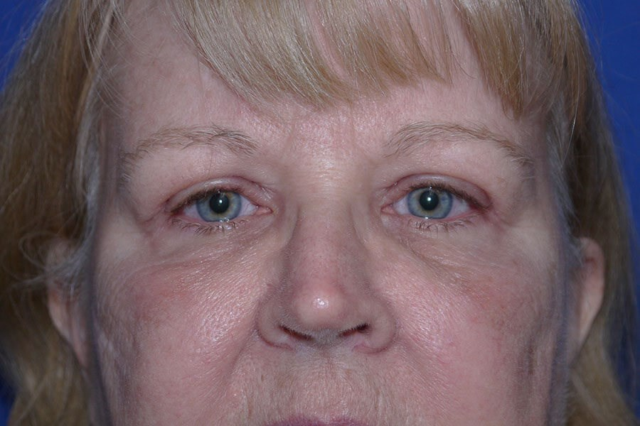 After Eyelid Surgery - Front View