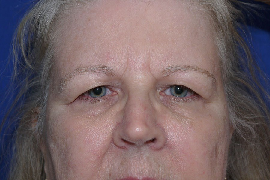 Before Eyelid Surgery - Front View