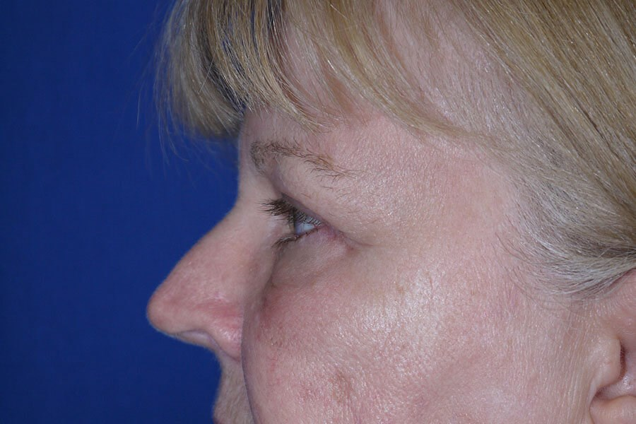 After Eyelid Surgery - Left Side