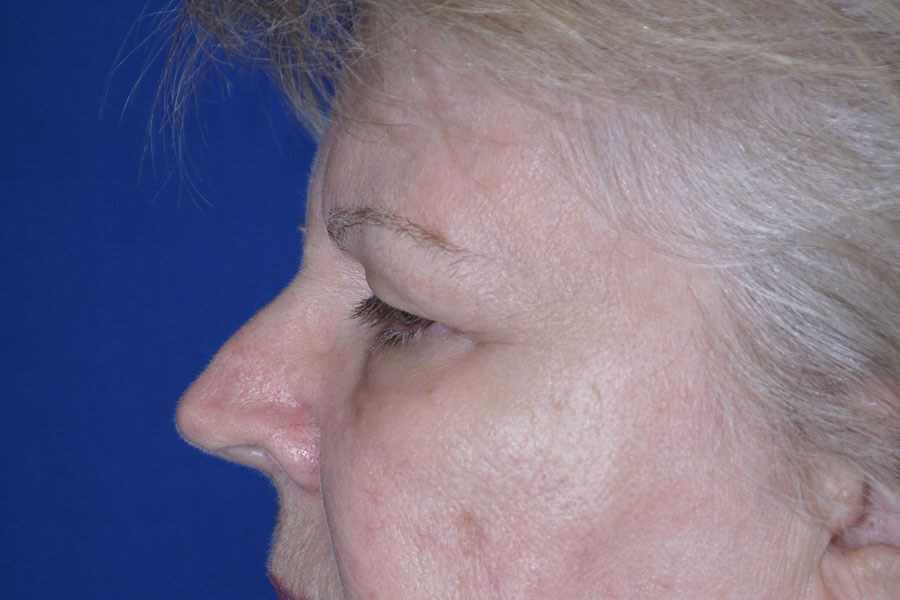 Before Eyelid Surgery - Left Side