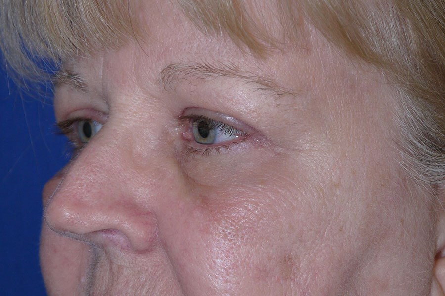 After Eyelid Surgery - Left Oblique Side