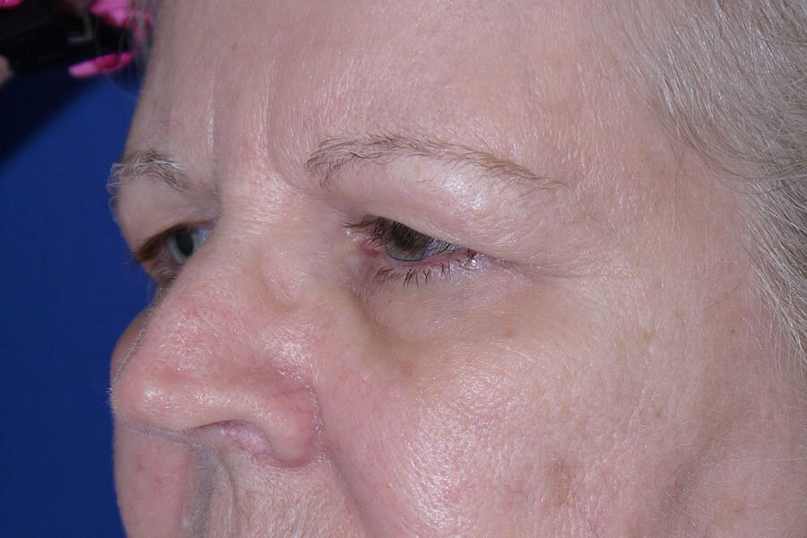 Before Eyelid Surgery - Left Oblique Side
