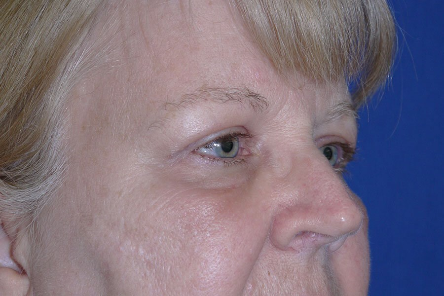 After Eyelid Surgery - Right Oblique View