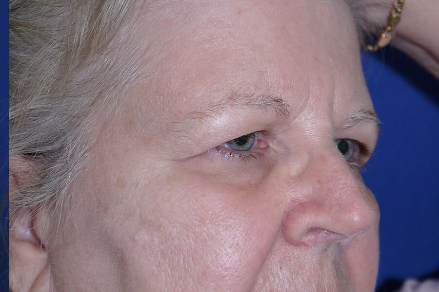 Before Eyelid Surgery - Right Oblique View