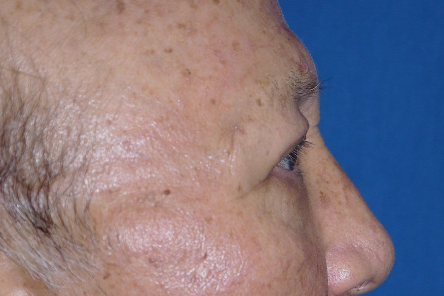 Brow Lift After - Right Side