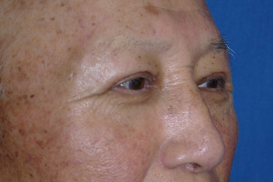 Brow Lift After - Right Oblique View