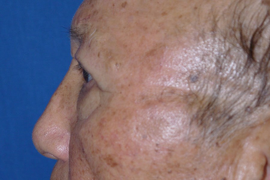 Brow Lift After - Left Side