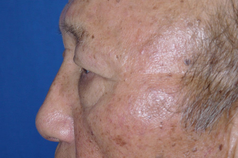 Brow Lift Before - Left Side