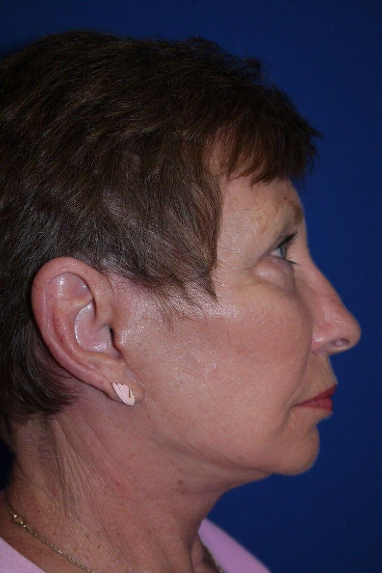 Neck Lift After - Right Side