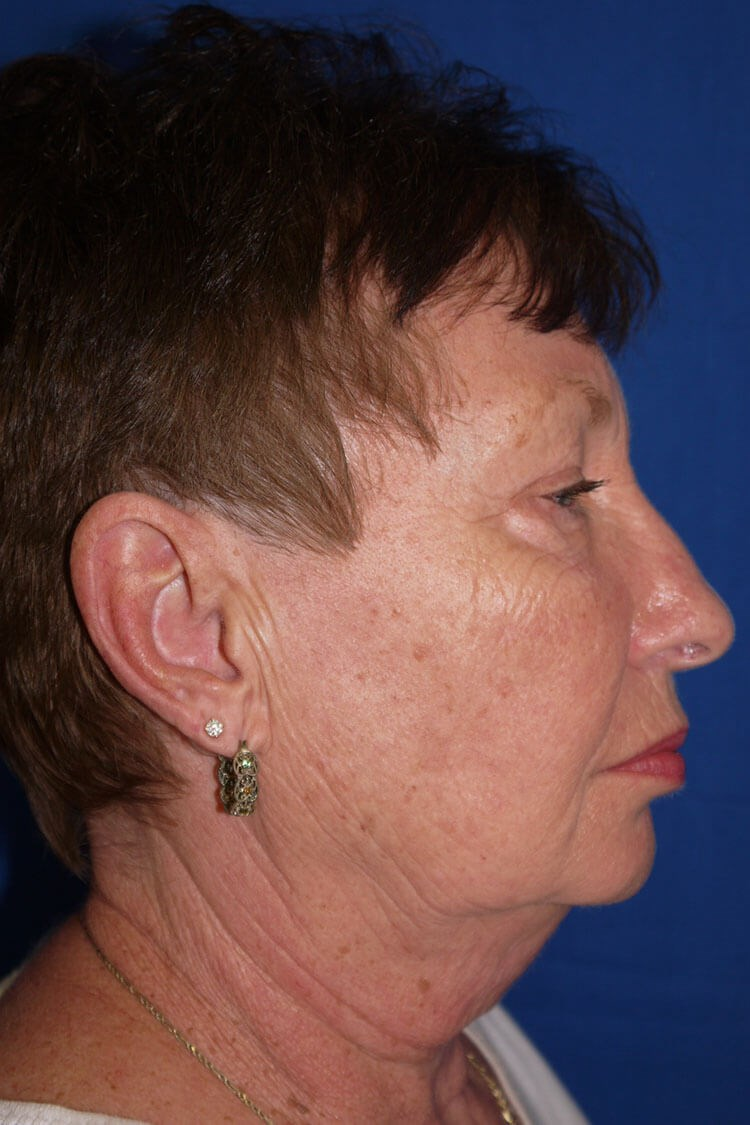 Neck Lift Before - Right Side