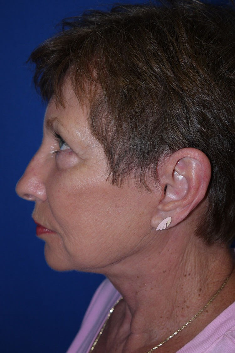 Neck Lift After - Left Side