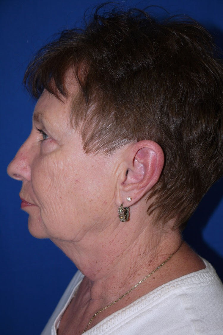 Neck Lift Before - Left Side