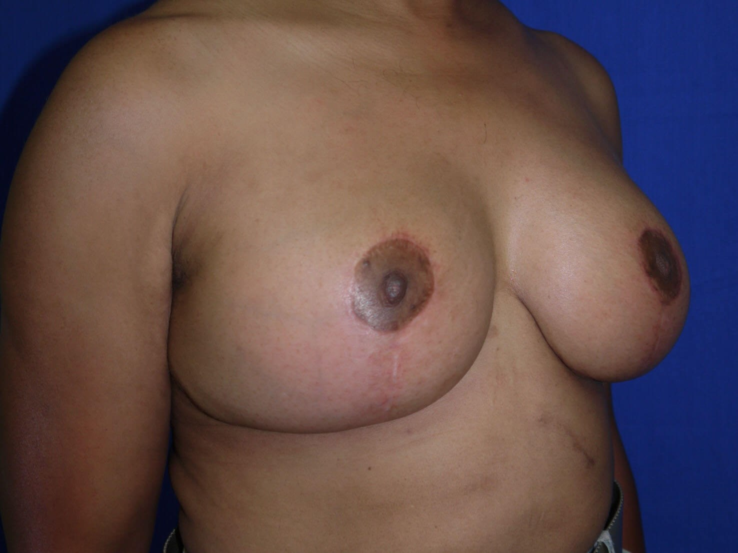 Breast Lift After - Right Oblique View