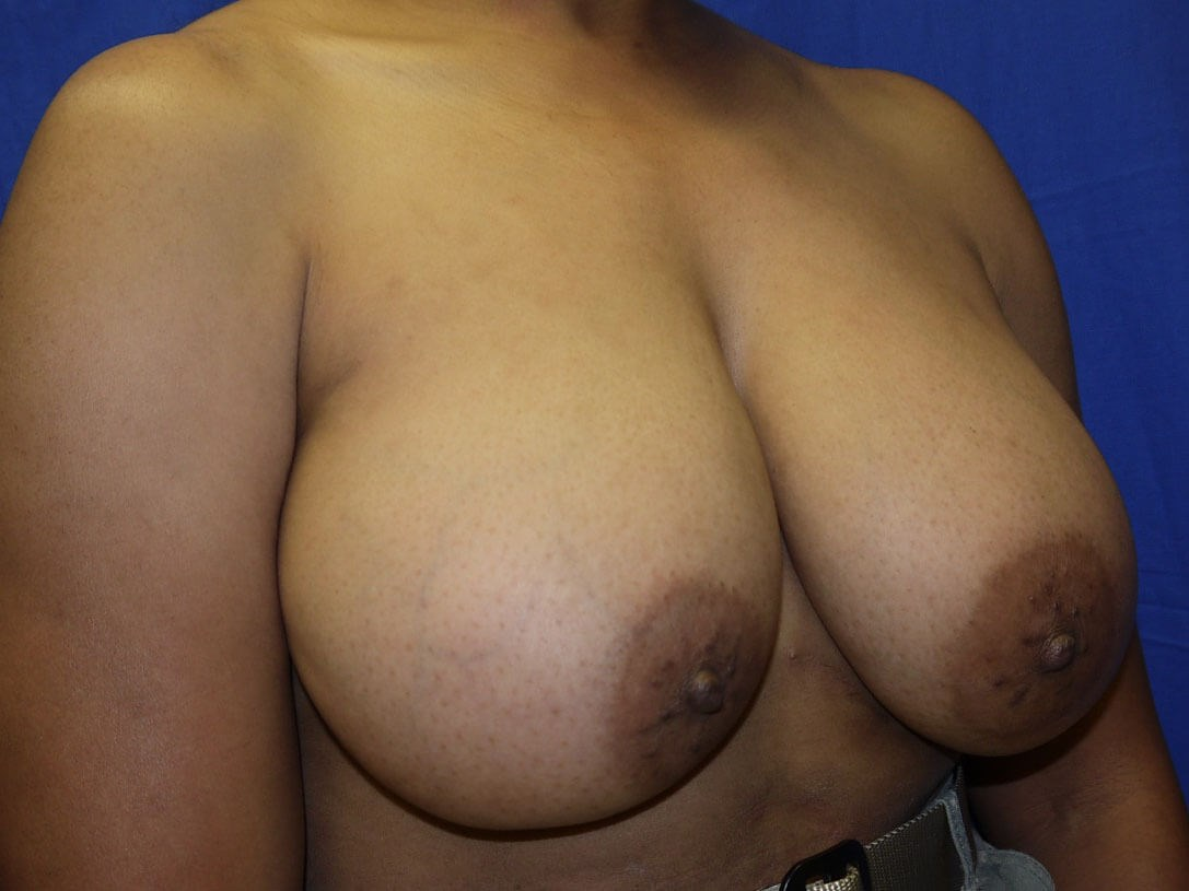 Breast Lift Before - Right Oblique View