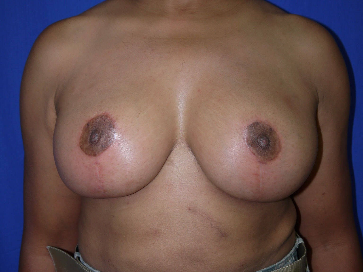 Breast Lift After - Front View