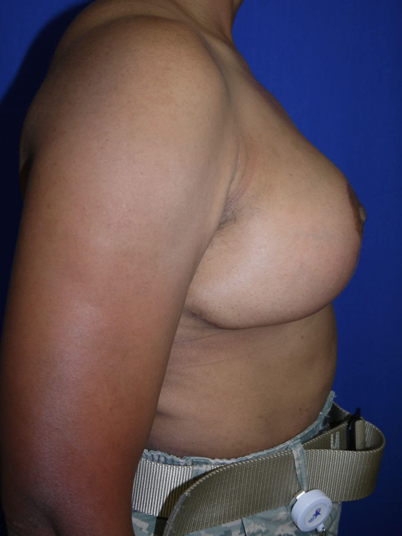 Breast Lift After - Right Side