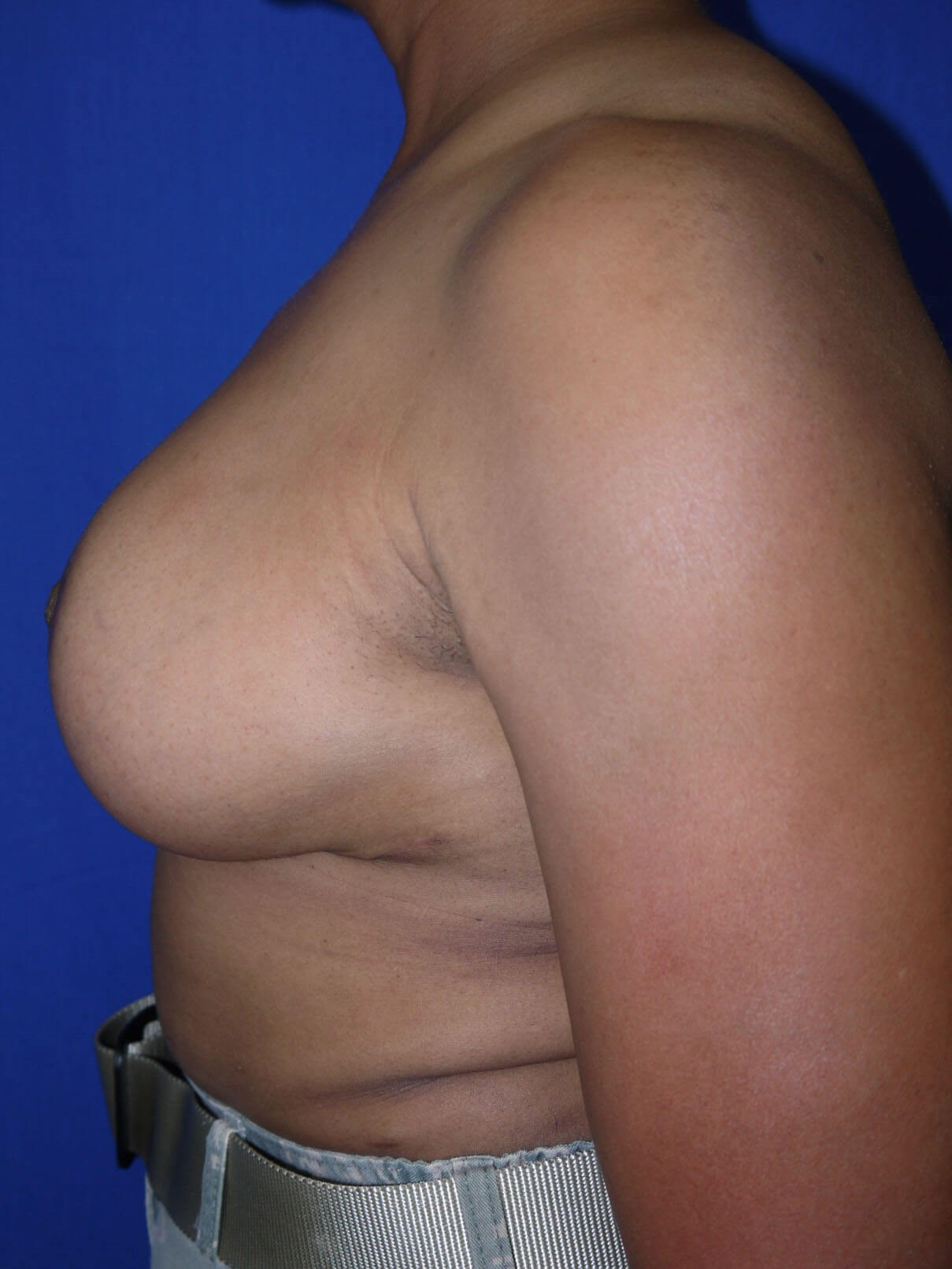 Breast Lift After - Left Side