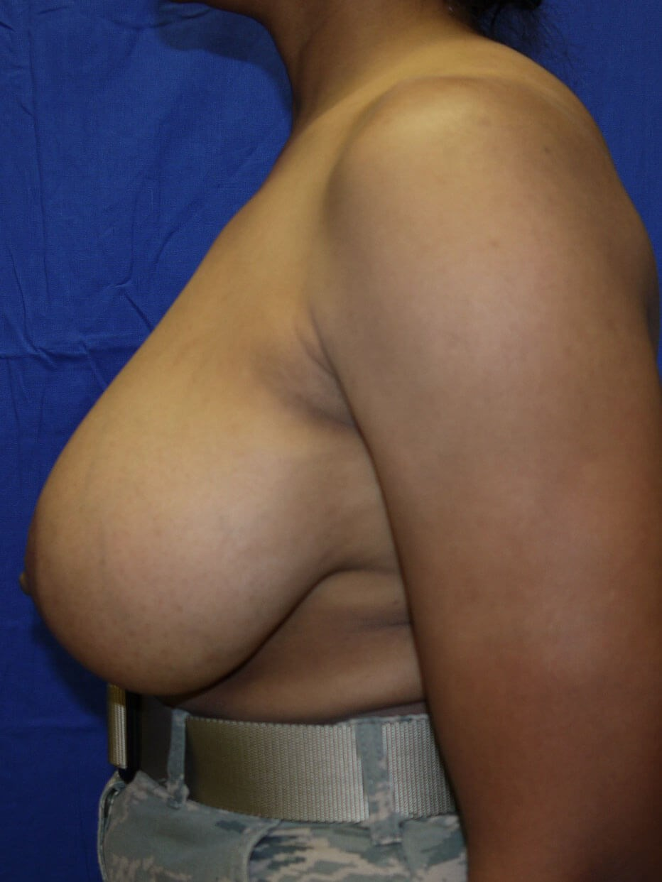 Breast Lift Before - Left Side
