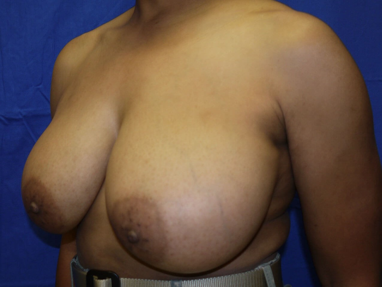 Breast Lift Before - Left Oblique View