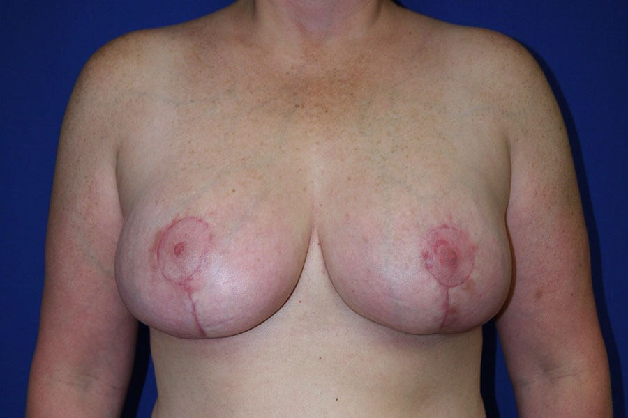 Breast Reduction After - Front View