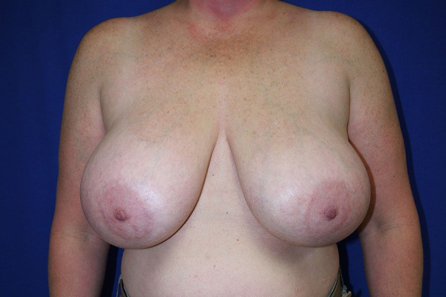 Breast Reduction Before - Front View